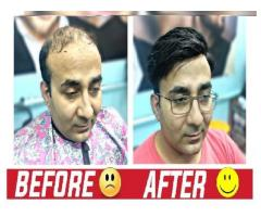 Get Hair Back in Just 2 Hours | Hair Weaving in Delhi